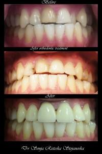 Cas orthodontiques